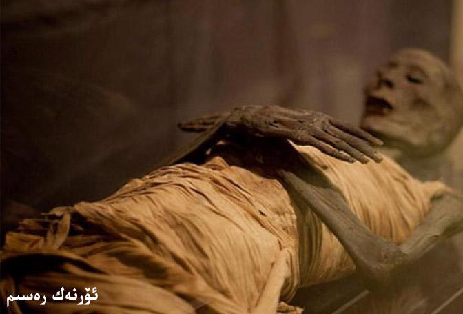 تۇنجى سوقۇر ئۈچەي ياللۇغى بولغان مومىيا بىمار
