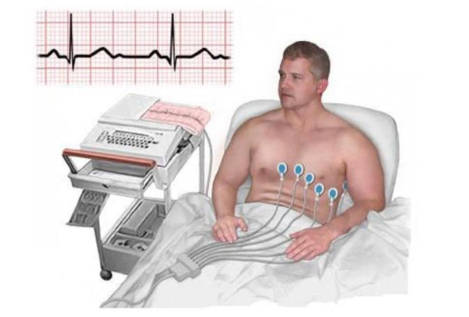 ئې كا گ EKG ئۈسكۈنىسى